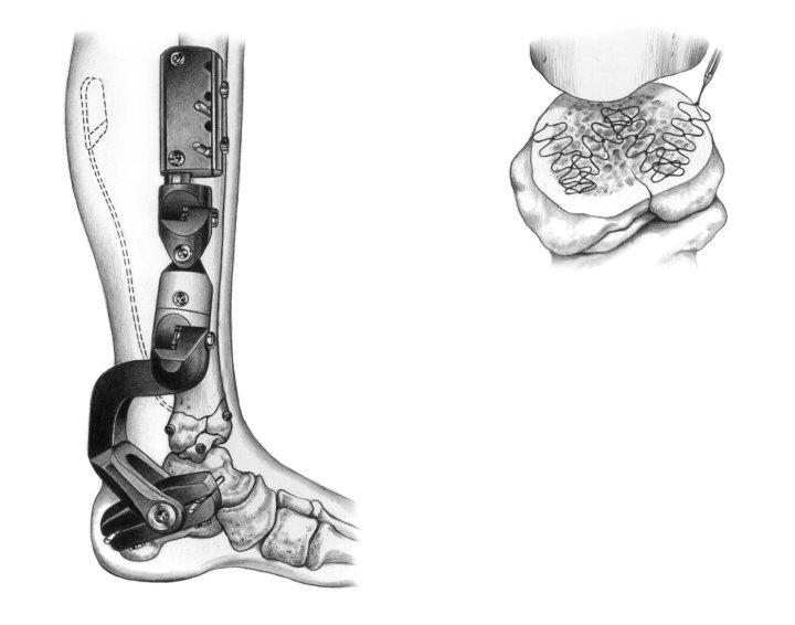 OrthoGen on tibia