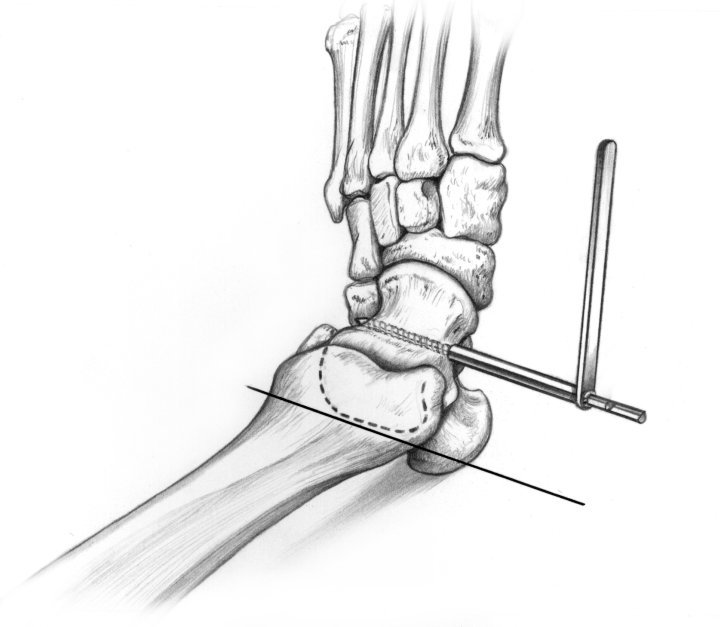Orthofix ankle 1