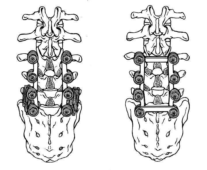 Spine Link line art