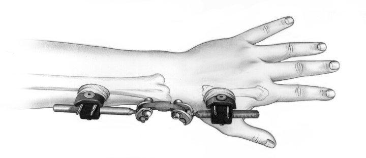 Wrist Fix10
