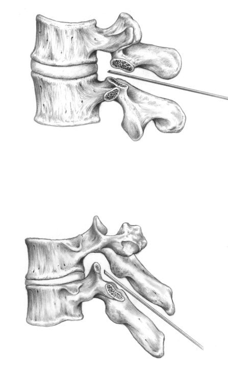 medial view of vertebra